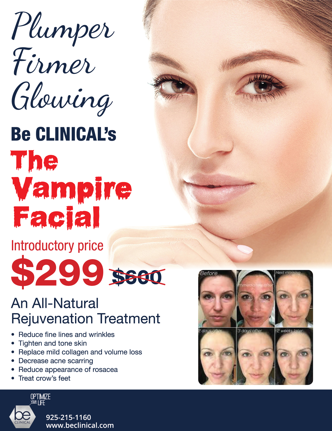 Vampire Facial_BeCLINICAL_Sept_Special